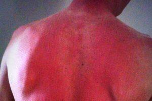 sunburn (20)
