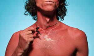 sunburn (9)
